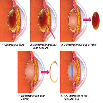 Cataract Extraction with Intraocular Lens (IOL) Implant